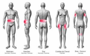 cryolipolyse paris cryoslim chirurgie esthetique paris cryolipolyse chirurgien esthetique paris docteur loreto