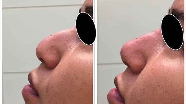 injection acide hyaluronique injections produits comblement paris fillers chirurgie esthetique paris fillers chirurgien esthetique paris dr federico loreto
