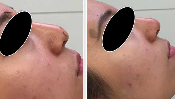 rhinoplastie avant apres paris rhinoplastie chirurgie esthetique paris rhinoplastie chirurgien esthetique paris dr federico loreto