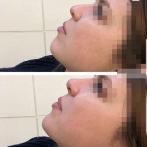 rhinoplastie medicale paris rhinoplastie medicale photos docteur loreto chirurgien esthetique paris chirurgie du visage medecine esthetique visage
