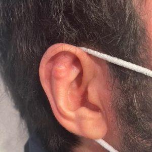 implant earfold non visible earfold paris docteur federico loreto paris chirurgien esthetique visage paris