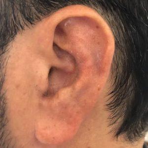 repositionnement implant earfold non visible earfold paris docteur federico loreto paris chirurgien esthetique visage paris